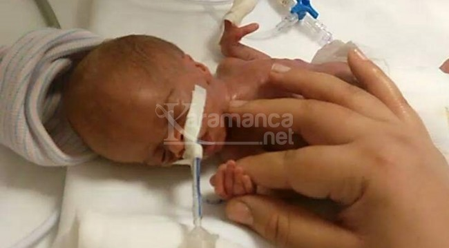 Parmak bebek Mehmet Basri 4,5 yaşında