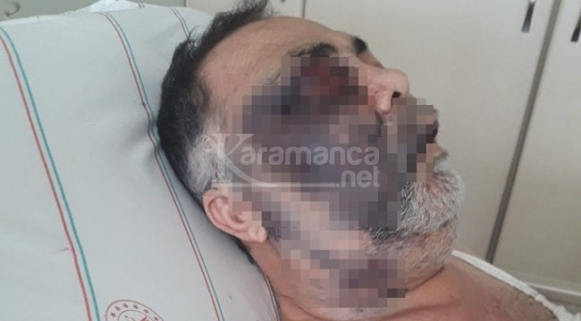Komşularının dövdüğü engelli adam öldü